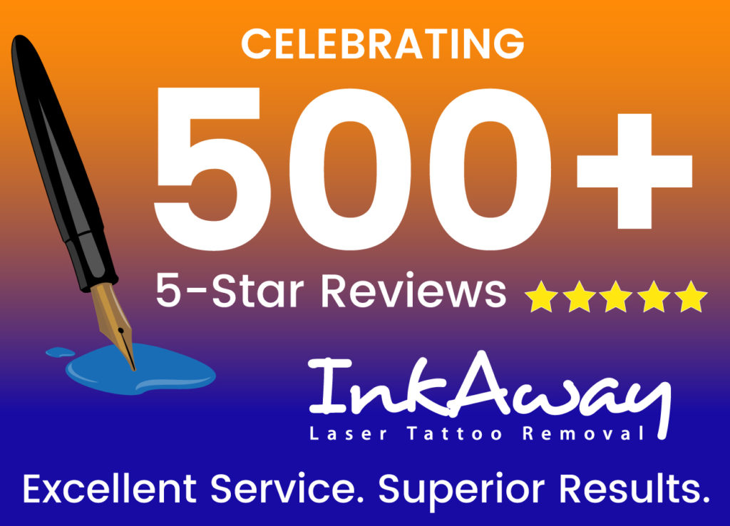 Philadelphia Tattoo Removal with Highest Customer Reviews